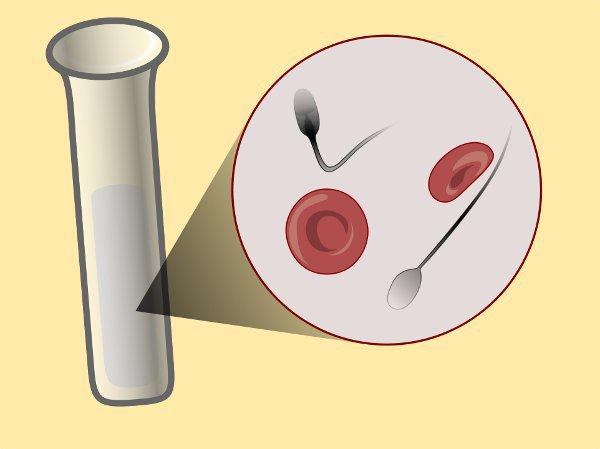 Симптомы заболевания сперма с кровю