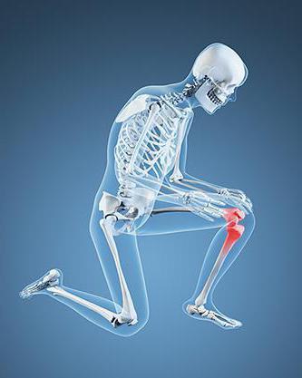 Боль в колене сбоку с внешней стороны
