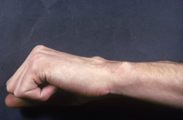 остеосклероз суставных поверхностей