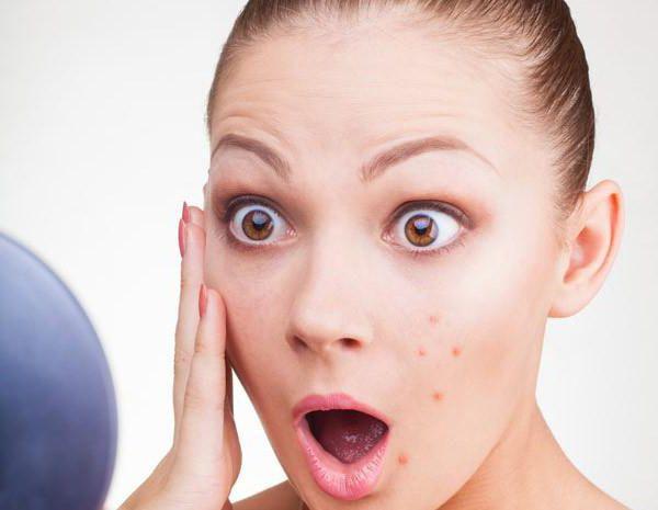 Современное лечение прыщей на лице