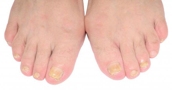 Грибок ногтей на ногах из за вросшего ногтя