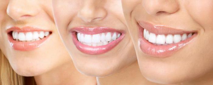 стоматология профилактическая
