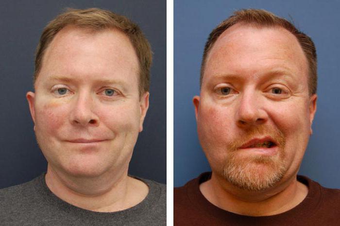 центральный паралич лицевого нерва