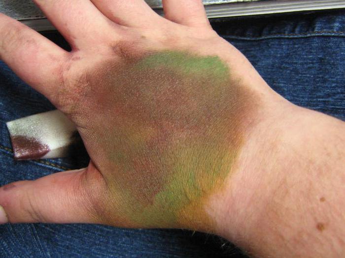 Чем лечить химические ожоги