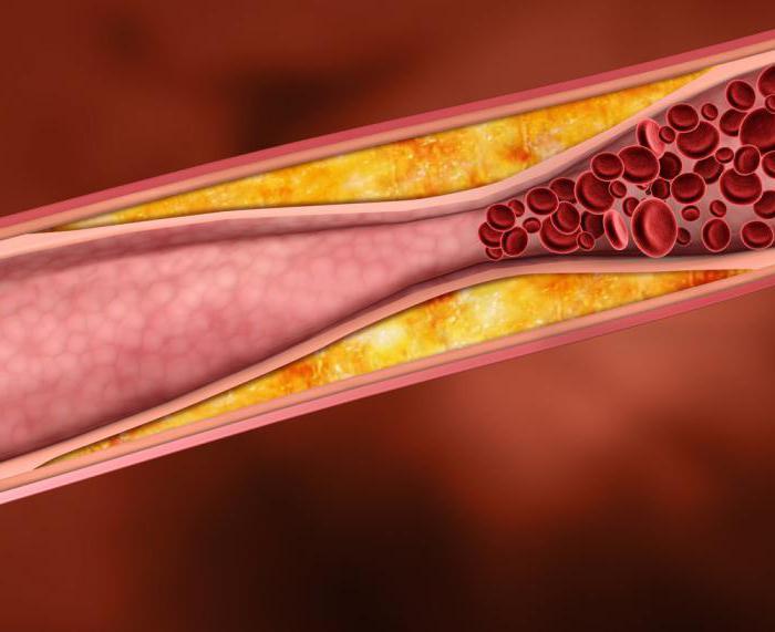 Брахиоцефальные артерии что это такое