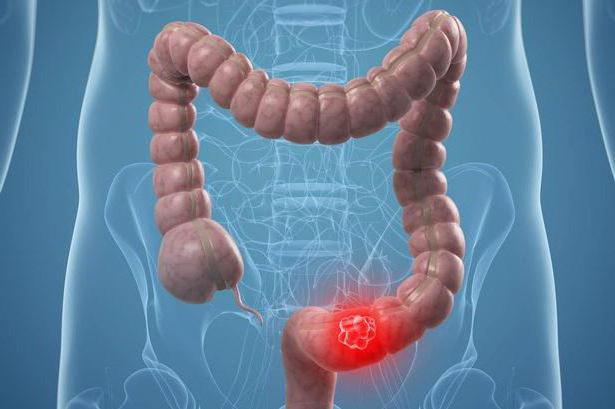 высокодифференцированная аденокарцинома кишечника