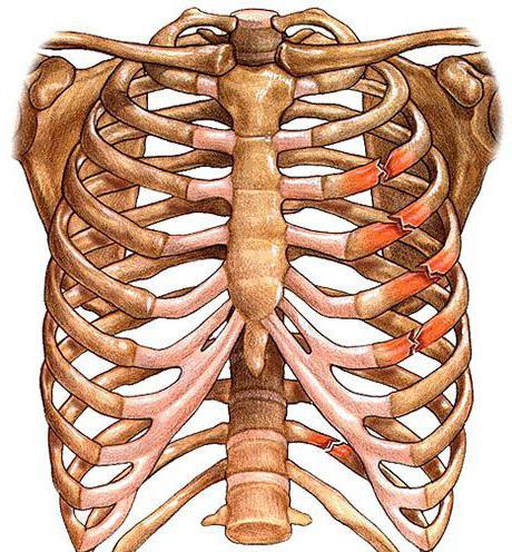 Cracked rib