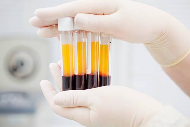 сдача плазмы крови польза и вред