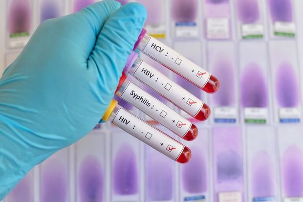 гонорея у мужчин лечение таблетки