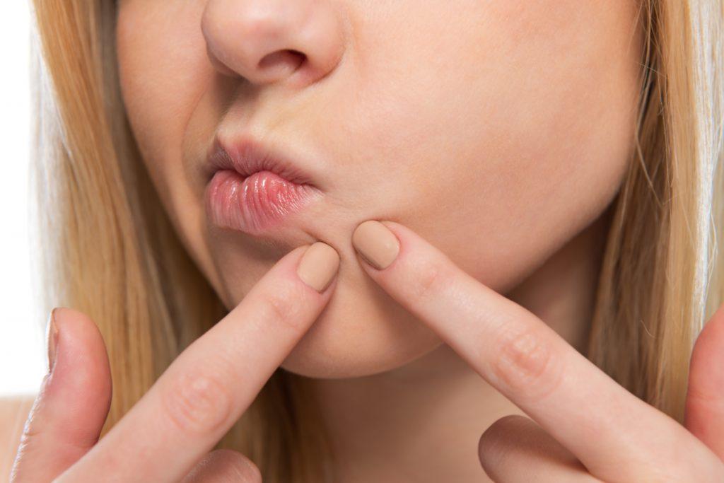 черные точки вокруг губ