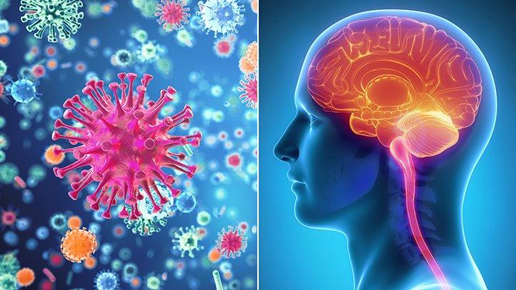 признаки менингита без температуры