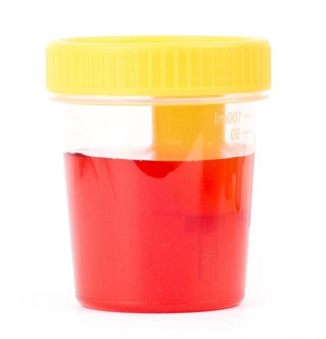 Цистит с кровью у женщин: причины и лечение