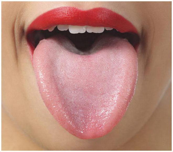 Болит горло и язык у основания