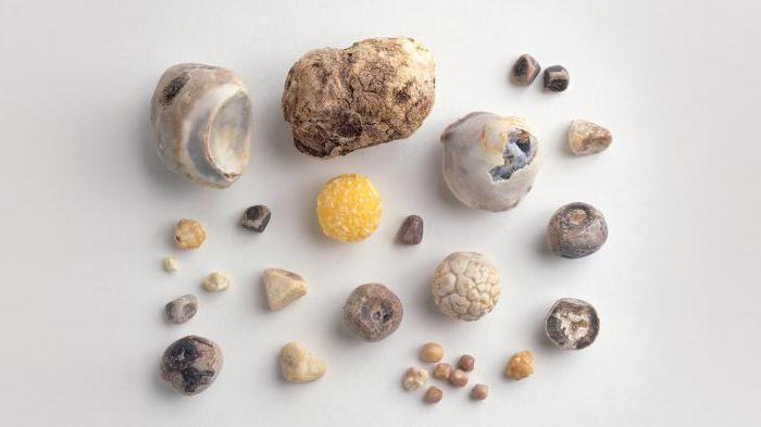 Что значит камни в желчном пузыре