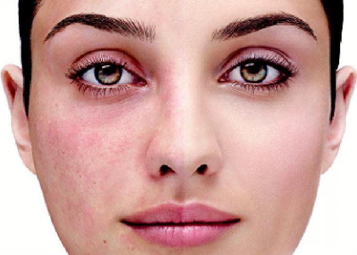 Причины купероза на лице и способы лечения