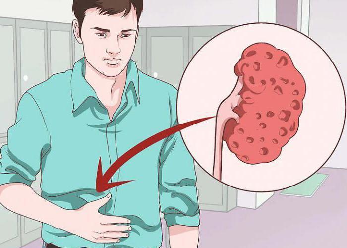 Занятие сексом при нефроптозе