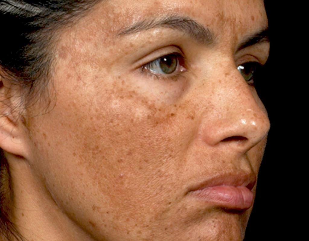 Как избавиться от пигментных пятен на лице в домашних условиях?
