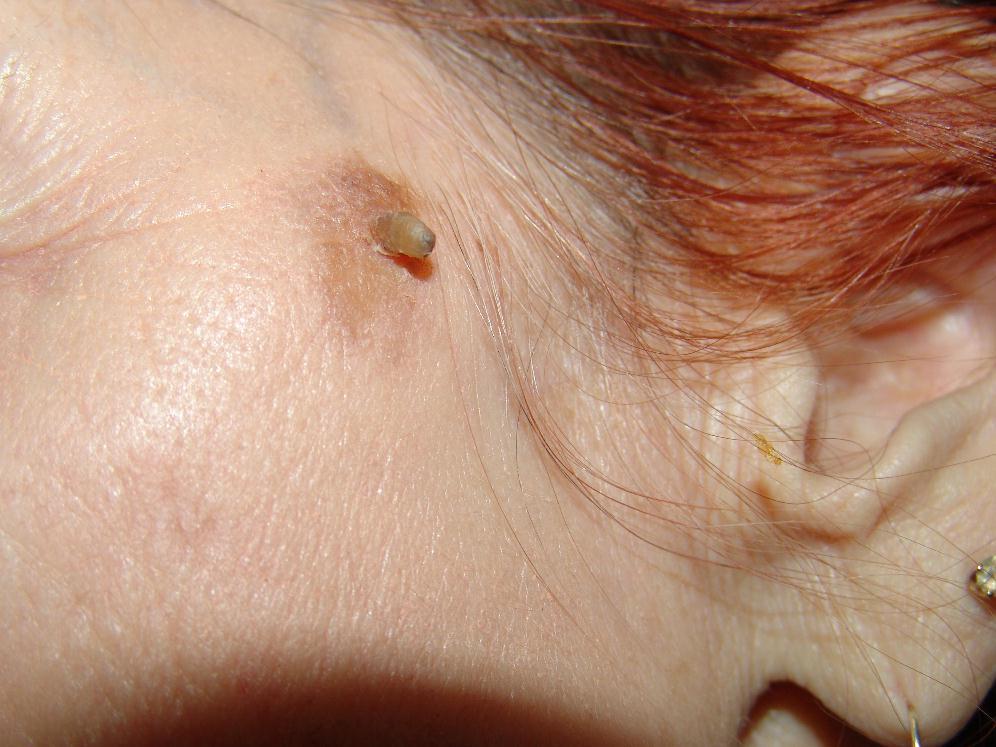 Виды новообразований на лице: удаление лазером, отзывы и фото