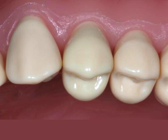 моляр зуб молочный