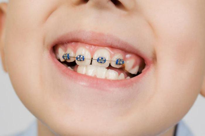 моляры зубы у ребенка
