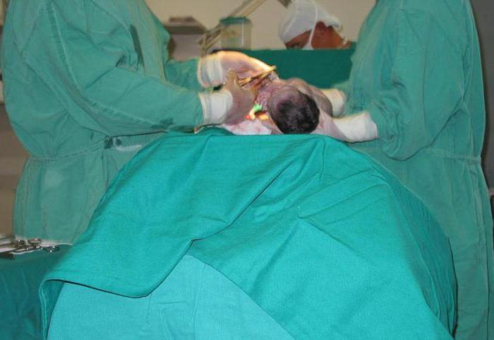 Операция по удалению пупочной грыжи у детей
