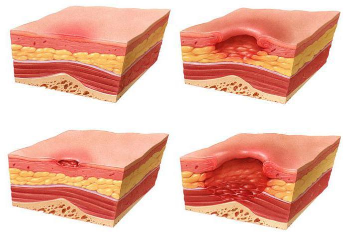 отмирание клеток кожи