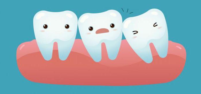 Зуб мудрости почему сложно удалить 46