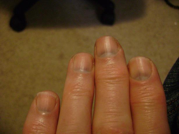 Черное пятнышко на ногте
