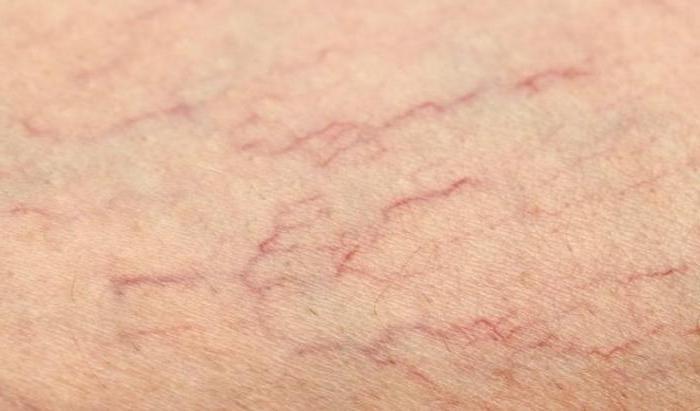Причина болей в ногах при варикозной болезни