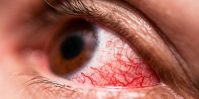 Глазные капли дексона