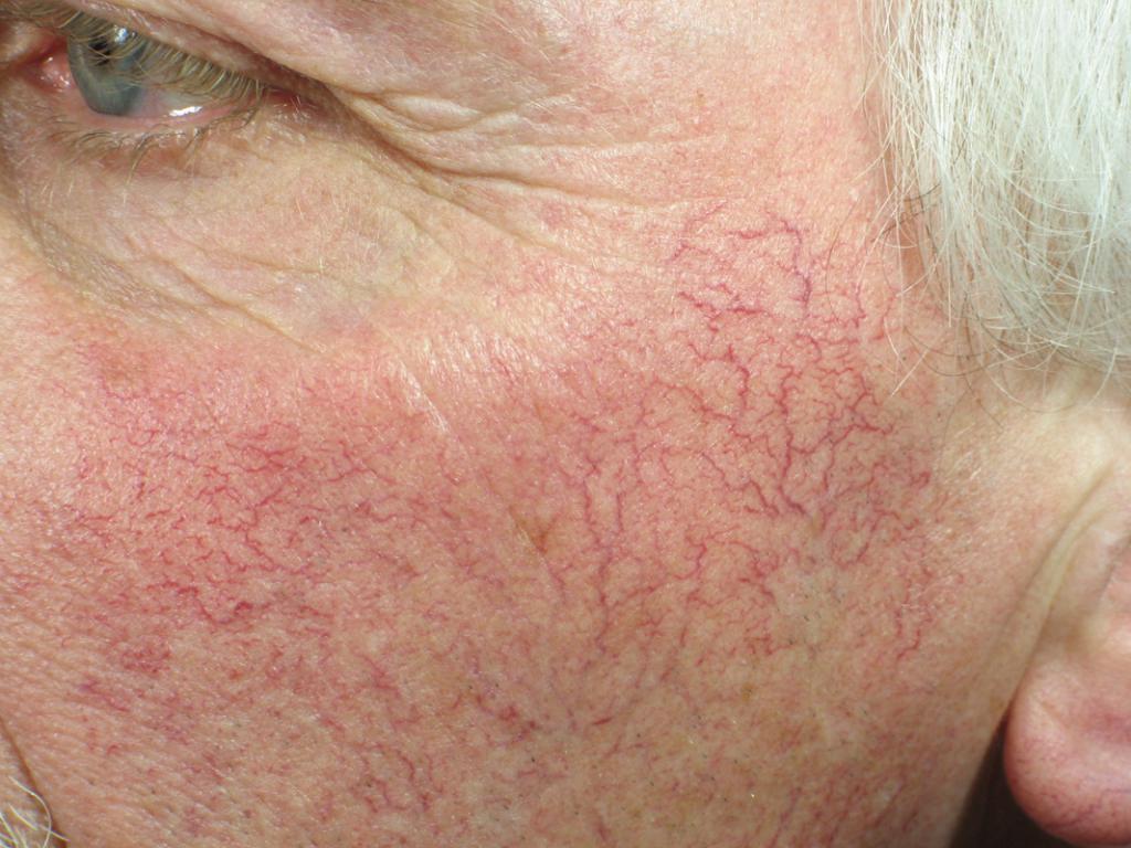 Розовые угри фото на лице чем лечить 3