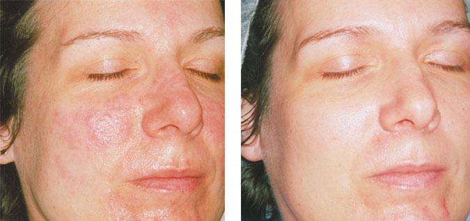 Розовые угри фото на лице чем лечить 2
