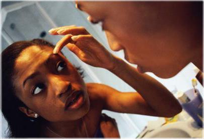 Прыщи в подростковом возрасте лечение