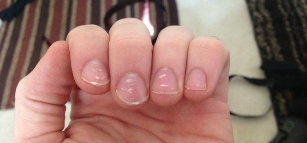 Пятна на ногтях что означают 4