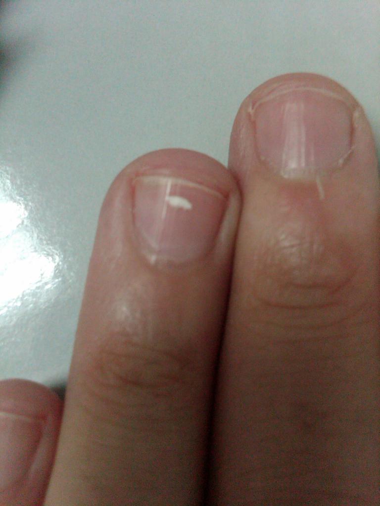 Пятна на ногтях что означают 31