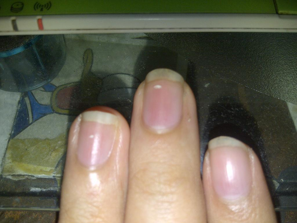 Пятна на ногтях что означают 5