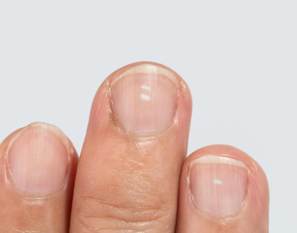 Пятна на ногтях что означают 27