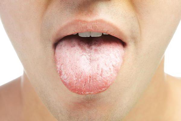 Опухший язык: причины