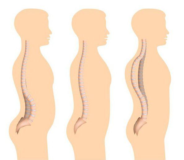спондилоэпифизарная дисплазия верхних и нижних конечностей