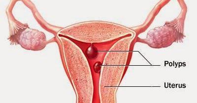 Полип при беременности кровит