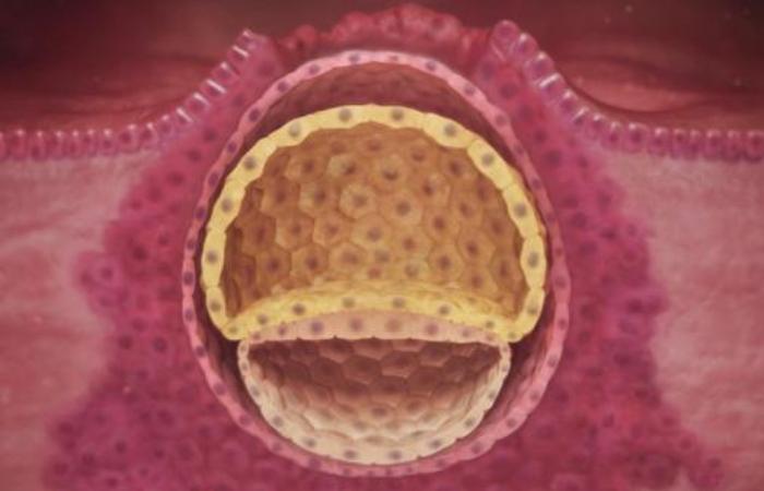 Fertilized egg implantation
