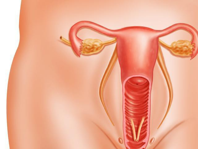 Полип на женских органах