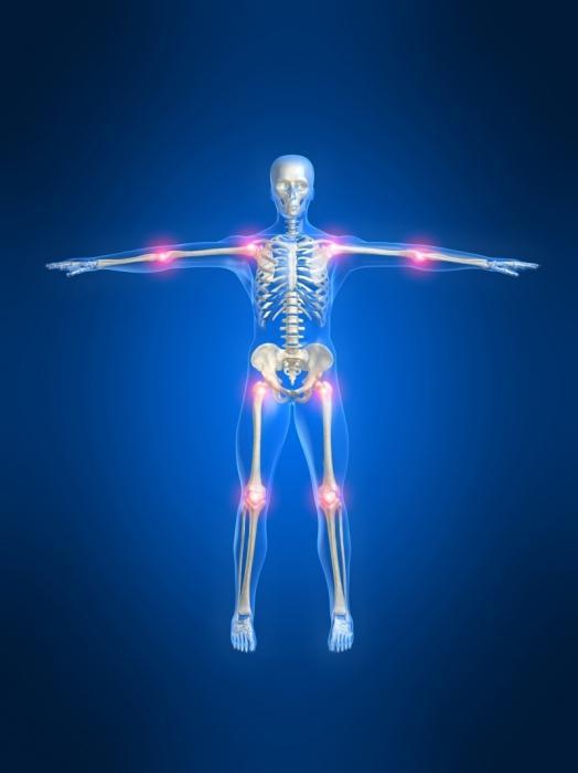 Йодовая сетка при болях в суставах