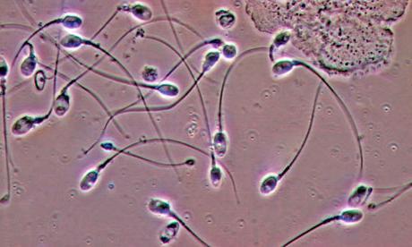 качество спермы после размораживания-по1