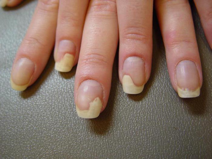 Чем лечить пустоты на ногтях