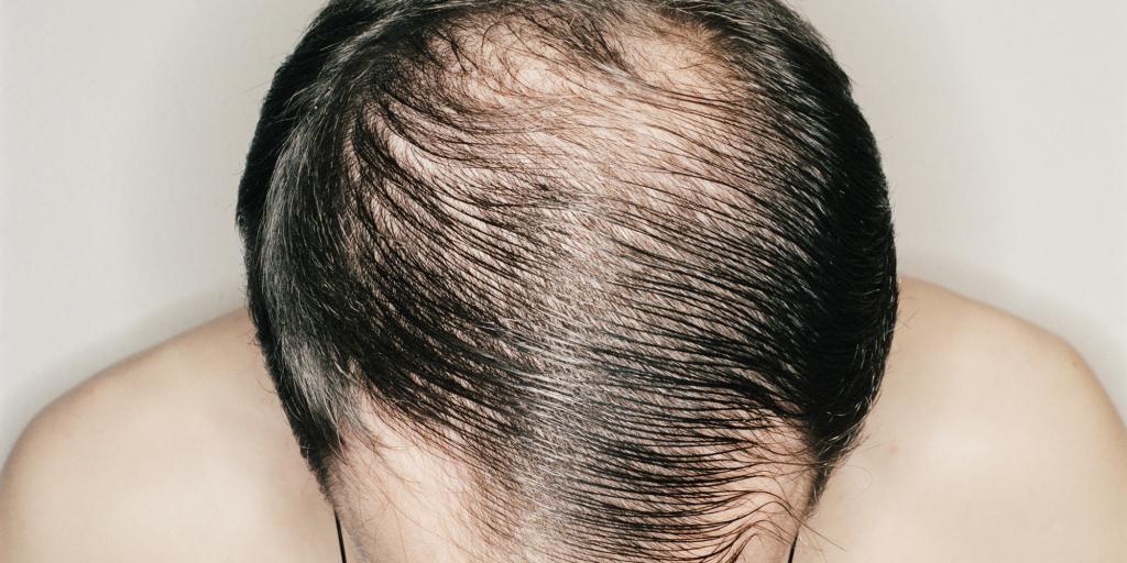 Средства для мужчин для роста волос: обзор препаратов, особенности применения, отзывы
