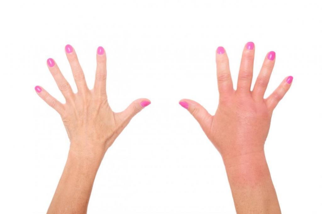 Почему опухают пальцы на руках и болят