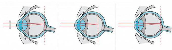 программа релакс для глаз