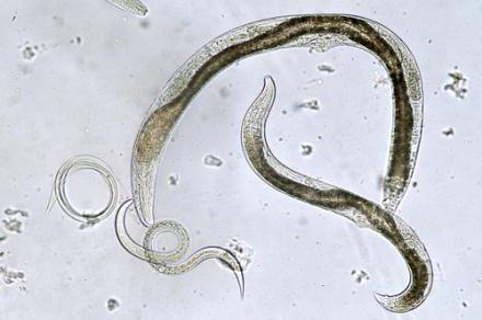 основные паразиты человека
