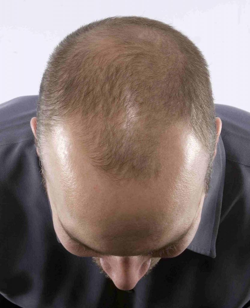 Скорость роста волос на голове у мужчин и способы стимуляции